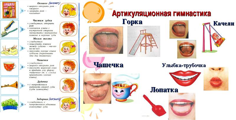 логопед в детском саду - ЦПМПК в Москве